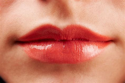 herpes on lips picture 1
