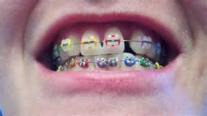 colored braces teeth picture 14