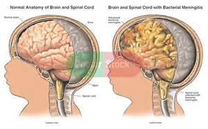 bacterial meningitis hole in brain picture 2