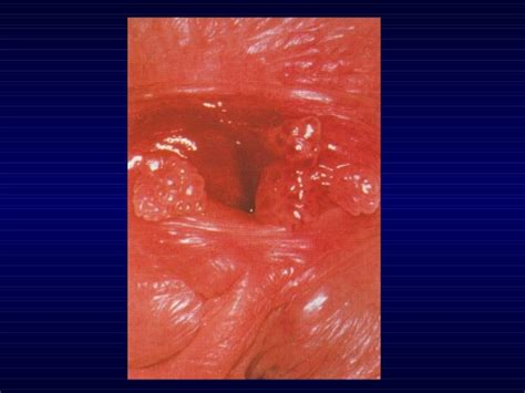 genital warts female picture 3