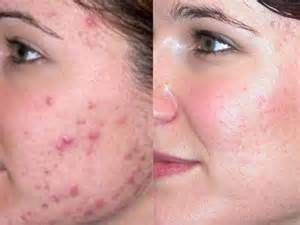 how to get rid of acne with home picture 10