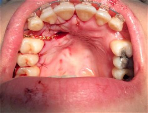 ligation of exposed tooth picture 2