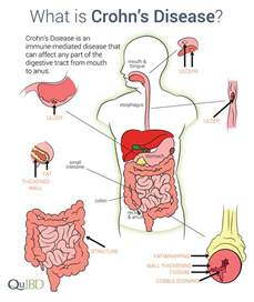colon resection for crohn's disease picture 3