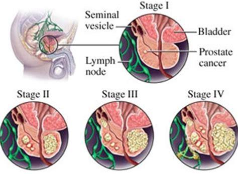 alice barrett bladder control picture 15
