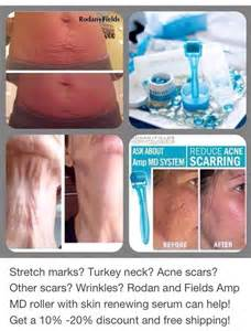 aminosculpt for acne scars and stretch marks picture 5