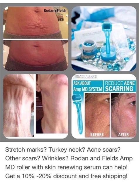 aminosculpt for acne scars and stretch marks picture 1