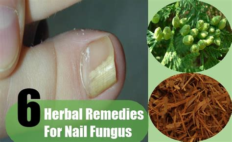 natural remedies for nail fungus picture 5