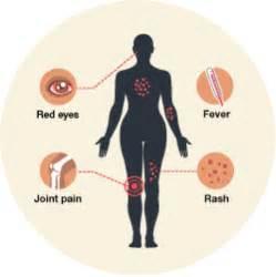 symptoms picture 10