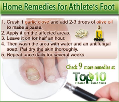 Athlete foot herbal remedy picture 5