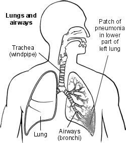 ill workcool that will workbacterial lung infection picture 3