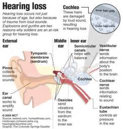 hearing loss and thyroid disease picture 5