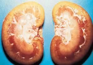 liver damage-chills picture 13