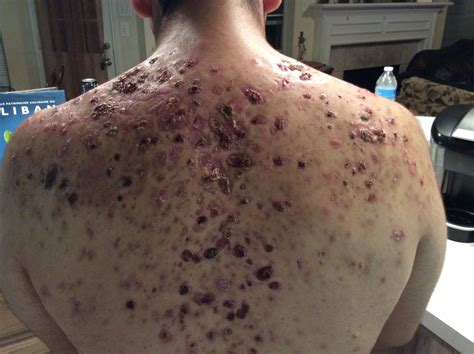 causes severe acne picture 7