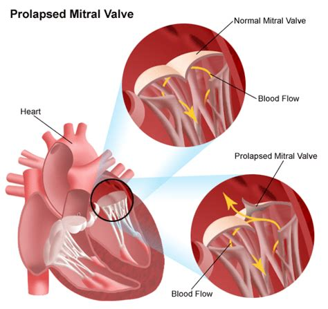 enlarged mitral valve herbal treatment picture 2