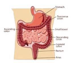colon tumor picture 1