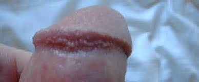 penis head wrinkled with dots picture 22