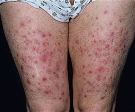 staph infections boils picture 9