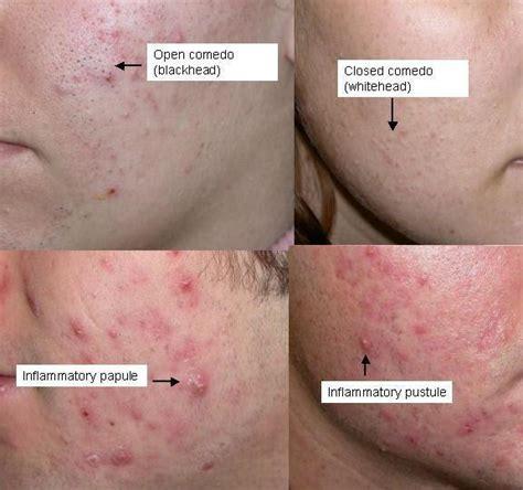 acne vs blackheads picture 1