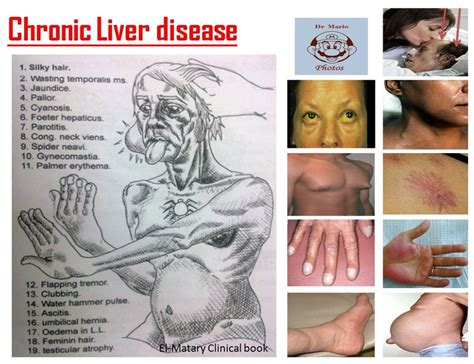 liver failure signs symptoms picture 5