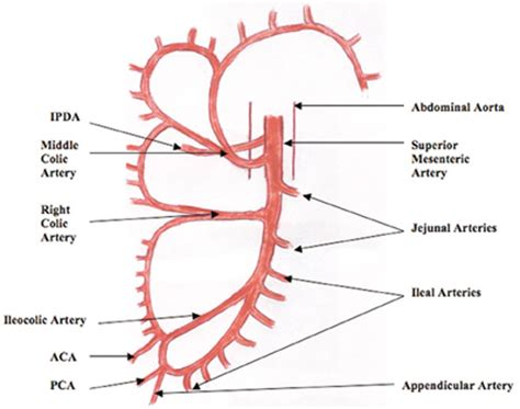 nonrotation of bowel and small mesenteric artery picture 5