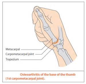 cmc joint and ganglion picture 3