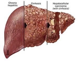 liver failure toxins brain picture 9