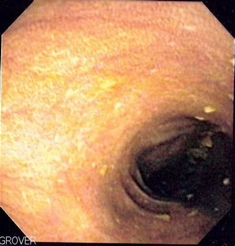 what is melanosis in the colon picture 1