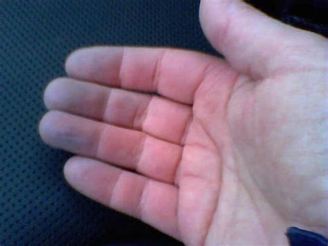 lip swelling finger nuckle swelling weight loss loww fever anemia picture 25