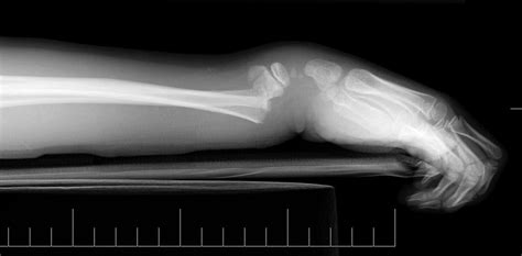 proxmal joint pain picture 3
