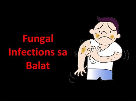 allergy sa balat remedy picture 6