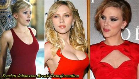 +without surgery breast enhancement before and after pictures picture 6