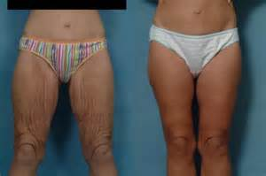 surgical procedure to tighten cellulite skin on thighs picture 3
