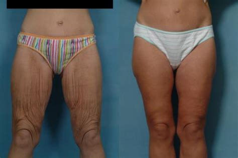lipo injections for weight loss picture 3