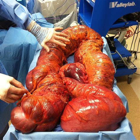 colon infections picture 7