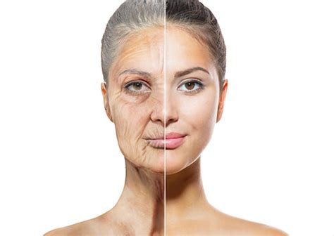 ageing technique picture 1