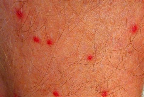 tiny red skin dots itch picture 3