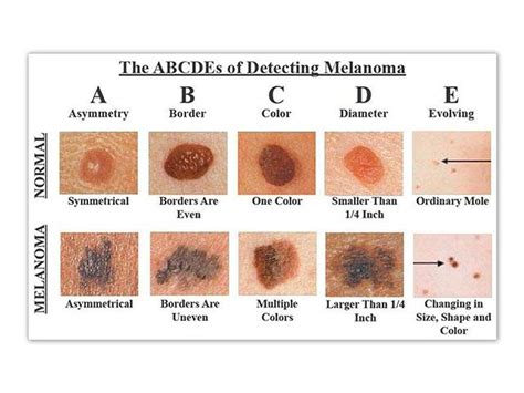 stages of skin cancer picture 3