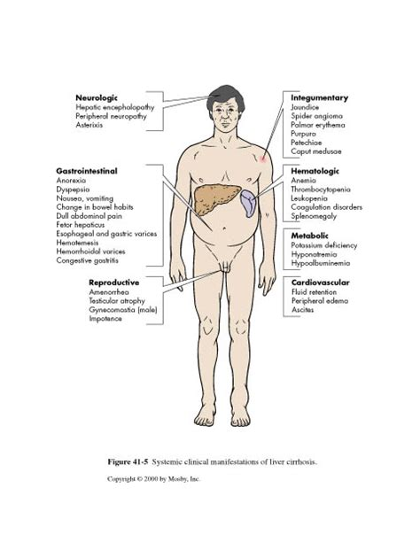 cholestatic liver disease signs and symptoms picture 8