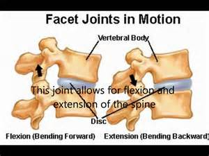 diagnosing facet joint dysfunction picture 18