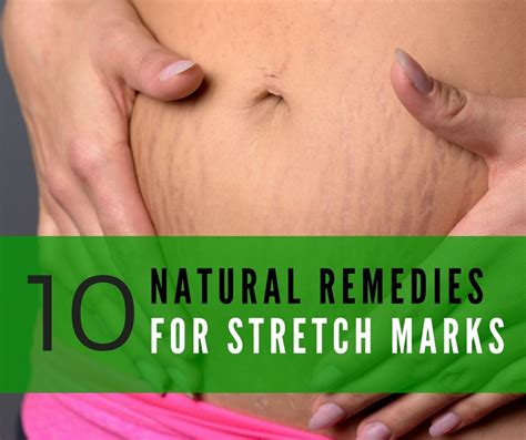 what is good for stretch marks picture 8