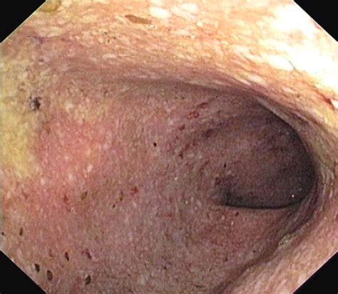 ulcerative colitis in the sigmoid colon picture 1