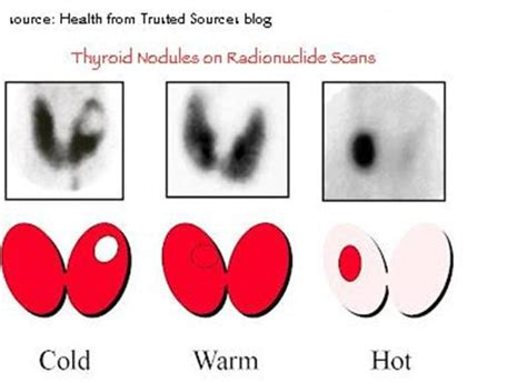 cold thyroid nodules picture 3