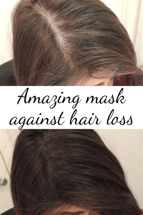hair loss mask nv picture 1