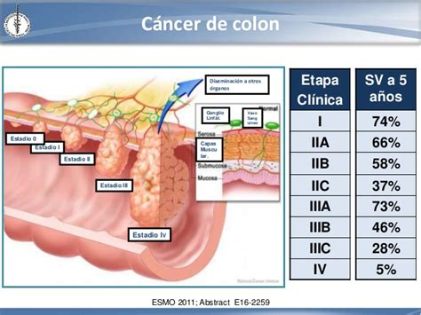 colon cancer stage 4 picture 15