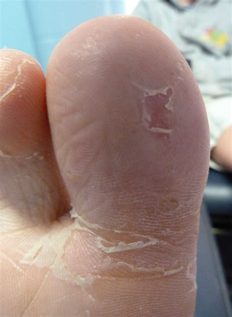 a picture of a plantar warts picture 5