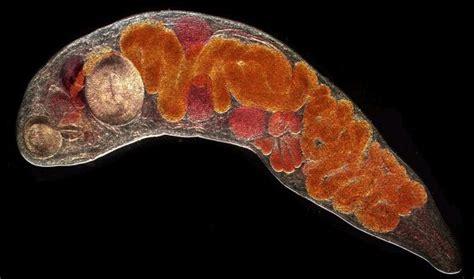 fasciola hepatica human liver fluke picture 7