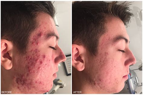 causes of acne picture 5