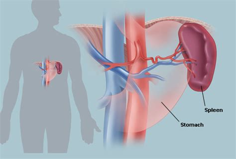 an enlarged spleen and having prostate cancer mean picture 3