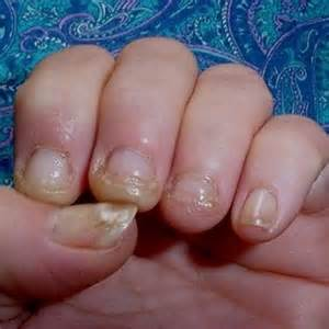 finger nail fungus lysol picture 9
