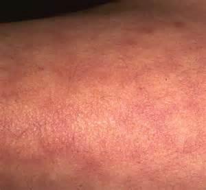 libido reticularis picture 17